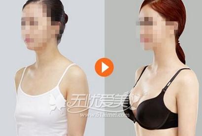 北京玉之光做自体脂肪隆胸