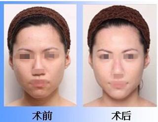 河北省中医院做激光美白嫩肤好吗