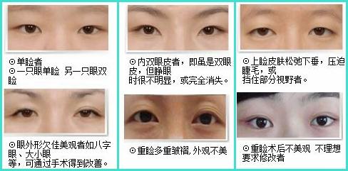 广东佛山哪家医院做双眼皮比较好