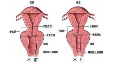 重庆晶肤阴道紧缩术