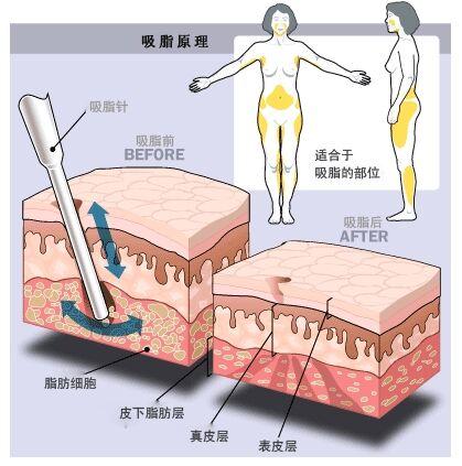 上海仁泉4D水雕吸脂减肥术