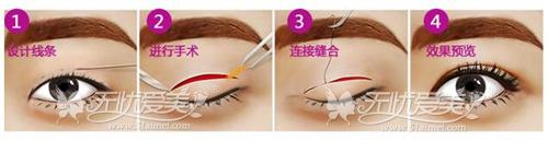 内蒙古做双眼皮手术哪家医院比较好