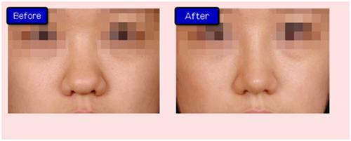 长沙瑞澜整形医院假体隆鼻手术对比案例图