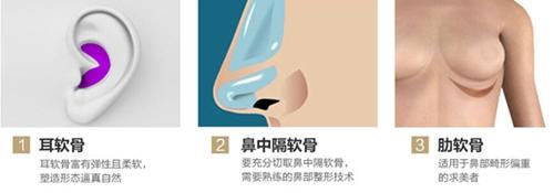 西安高一生整形医院自体软骨隆鼻软骨取材