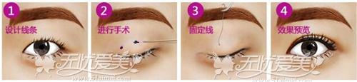 珠海科美整形韩式双眼皮