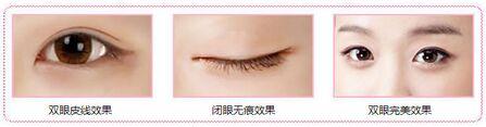 资阳伊之美韩式双眼皮手术