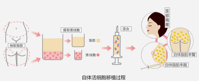 自体活细胞移植原理