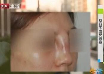 隆鼻失败少女经历