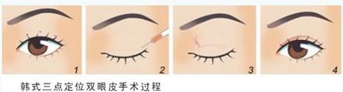韩式三点法双眼皮