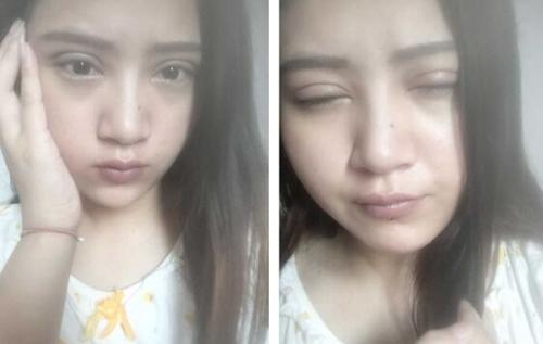 上海华美割双眼皮案例
