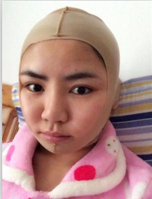 上海华美颧骨手和颌角手术经历
