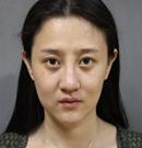 在上海华美做双眼皮、玻尿酸隆鼻、自体脂肪丰面部