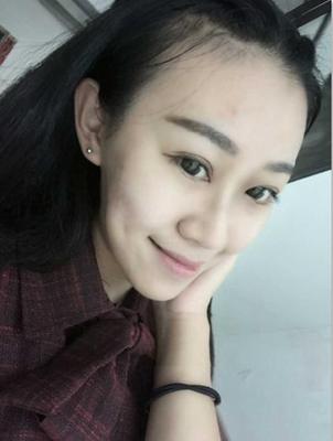 上海华美韩式三点双眼皮