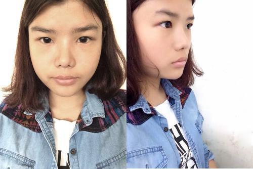 上海华美鼻综合+内眼角+瘦脸针