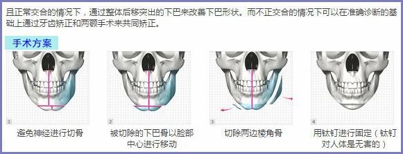 上海华美面部轮廓成形术