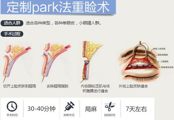 上海华美定制park法重睑术