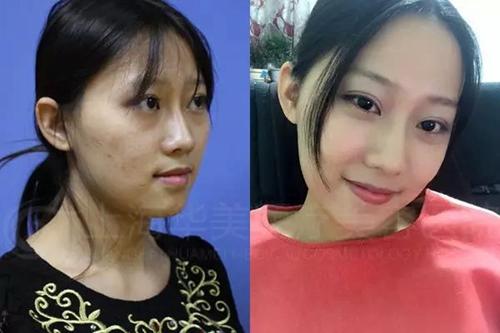 上海华美李志海做的颧骨内推手术