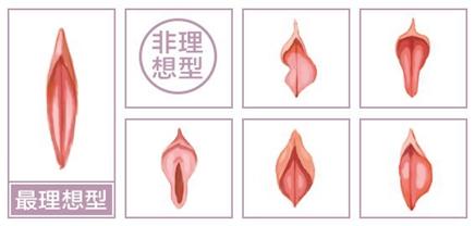 重庆天妃阴唇整形