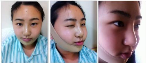 上海华美做膨体隆鼻和下颌角的过程