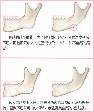 郑大二附院下颌角手术