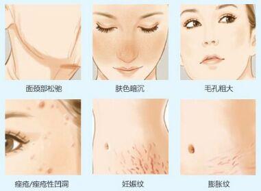 细纹皮肤层次结构图
