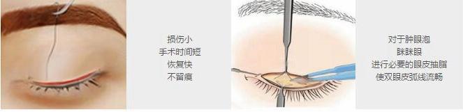 北京京民无痕双眼皮