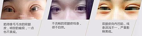 成都米兰双眼皮手术