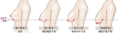 胸部下垂程度