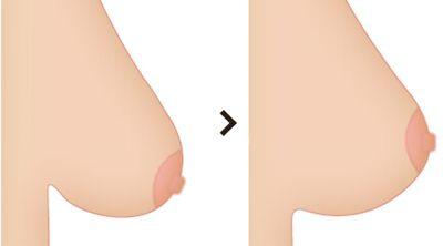 胸下垂手术前后对比图