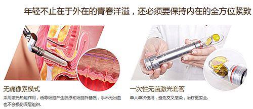 阴道紧缩术手术方法