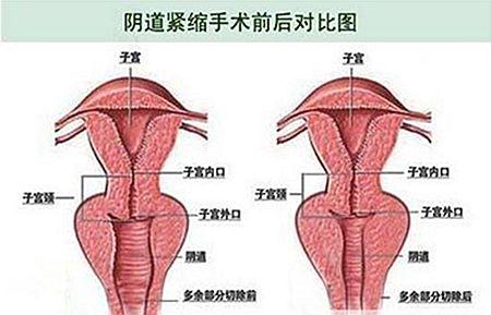 阴道紧缩术前后对比图