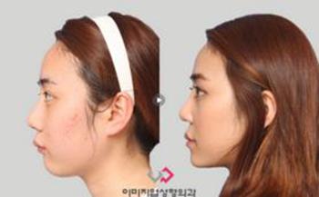 韩国伊美芝下巴矫正手术案例
