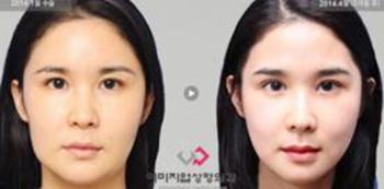 韩国伊美芝下颌角截骨手术案例