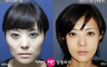 韩国伊美芝面部轮廓,颧骨缩小手术案例