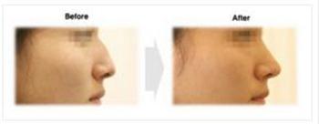韩国伊美芝驼峰鼻矫正手术案例