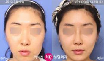 韩国伊美芝歪脸矫正手术案例