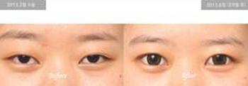 韩国伊美芝眼角切开手术案例
