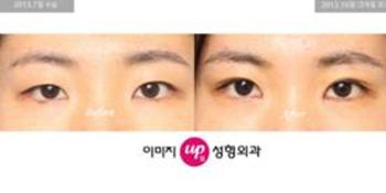 韩国伊美芝双眼皮手术案例