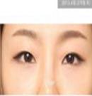韩国伊美芝去眼袋和黑眼圈手术案例