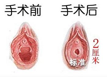 深圳广和医院能做处女膜修复手术前后对比图