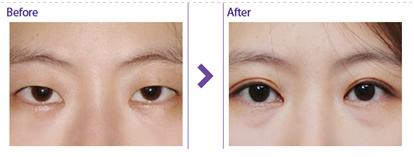 韩国MVP整形医院双眼皮手术对比图