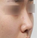 韩国MVP整形医院鹰钩鼻矫正对比图