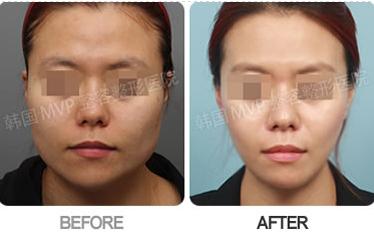 韩国MVP整形医院颧骨+四方脸整形手术对比案例