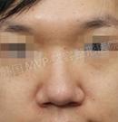 韩国MVP整形医院蒜头鼻矫正手术案例对比
