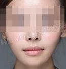 韩国MVP整形医院下颌角整形手术对比案例