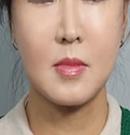 韩国MVP整形医院童颜提拉除皱整形手术案例对比图