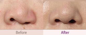 韩国MVP整形医院唇腭裂第二次鼻部再建整形术对比案例