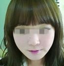 韩国那木下颌角手术,让我拥有小v脸