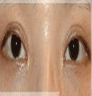 韩国主恩整形医院双眼皮修复对比照片