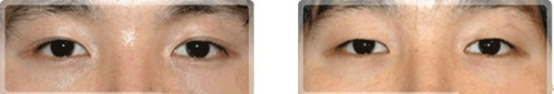 韩国主恩整形医院双眼皮变单眼皮对比照